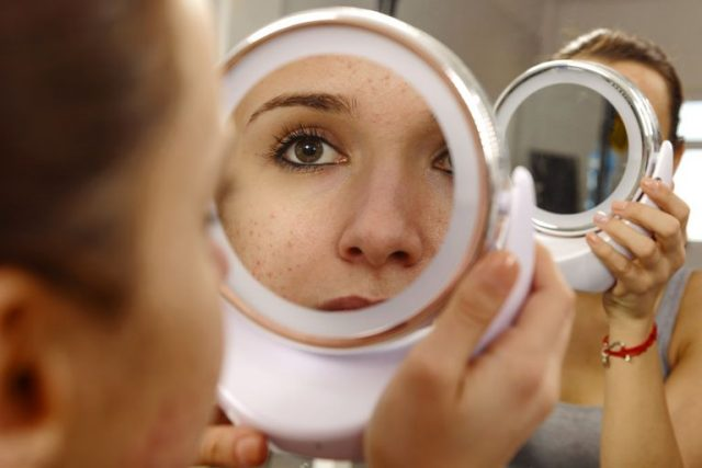 11 Common Acne Treatments That Really Work