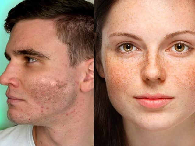 How To Get Rid Of Dark Spots In 5 Way – That Really Work